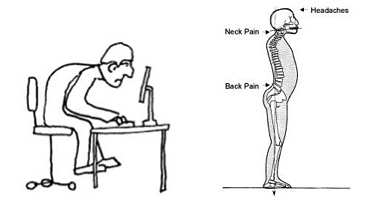 Examples of Poor Posture